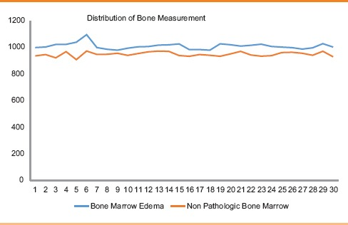 Dual energy CT and research of the bone marrow edema: Comparison with MRI imaging.