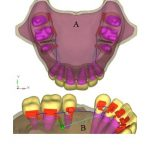 Evaluation of stress generation on the cortical bone and the palatal micro-implant complex during the implant-supported en masse retraction in lingual orthodontic technique using the FEM: Original research.